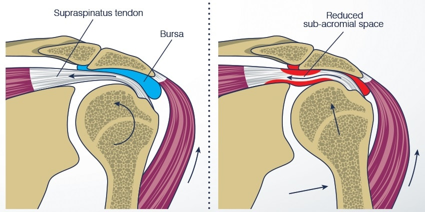 (Photo: howtorelief) Shoulder impingement syndrome occurs when the muscle tendon and/or bursa around the shoulder become pinched between the bones of the shoulder joint